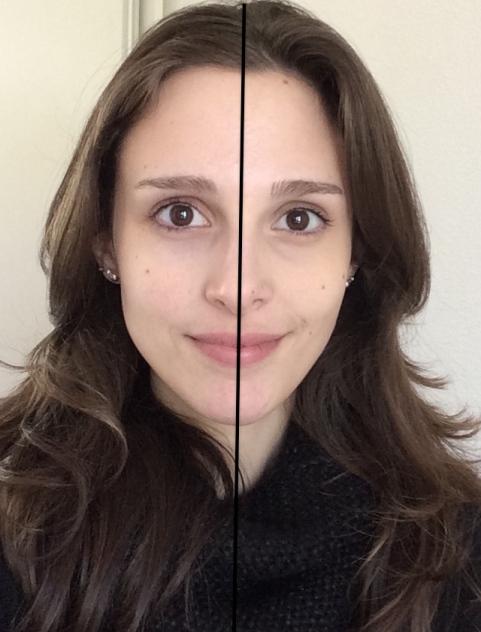 Comparação: sem nenhuma maquiagem na pele X com o corretivo QDB na região das olheiras